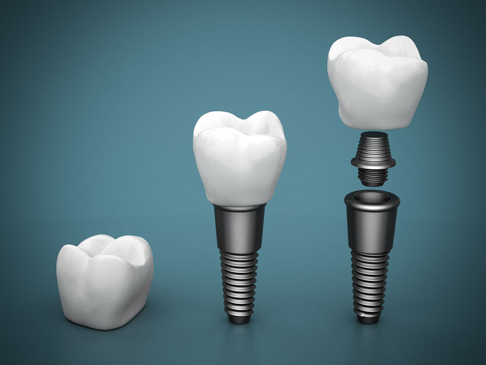 An image of dental implants. One just the crown, another with the crown on the screw, and the third showing all the pieces of the implant.